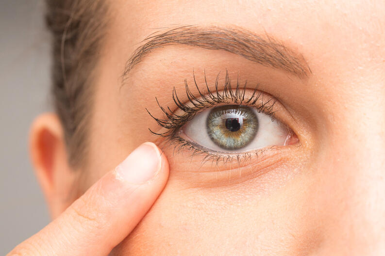 ¿Por qué se producen las bolitas de grasa en el ojo y cómo quitarlas?