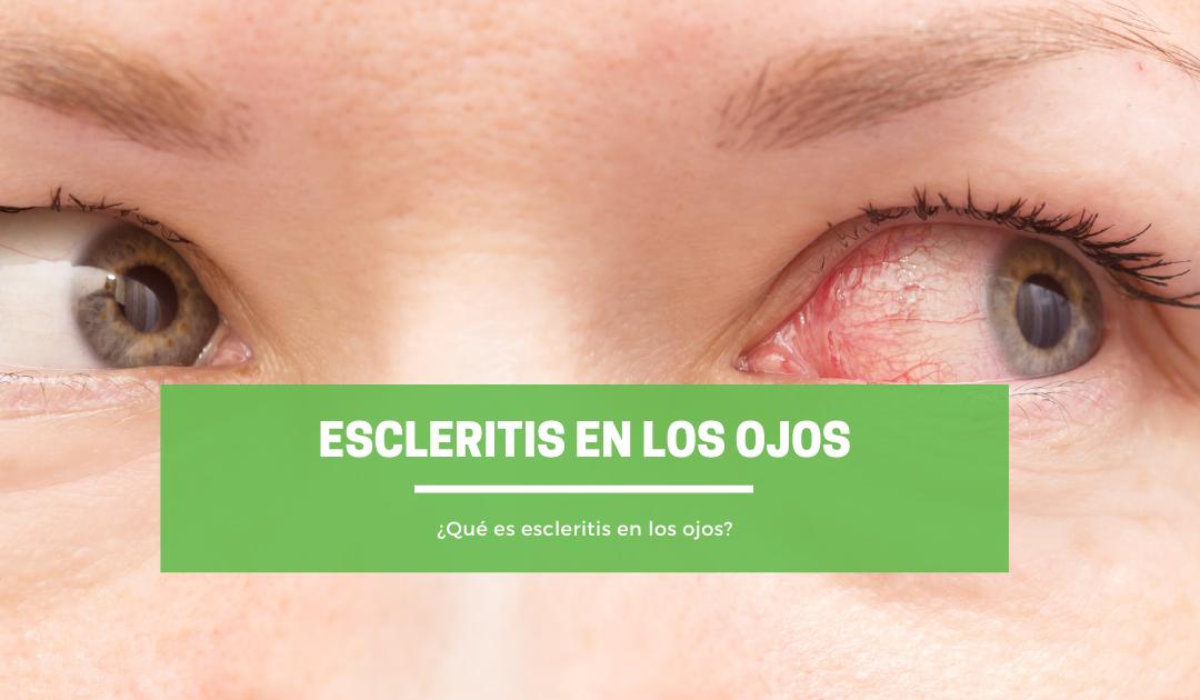 ¿Qué es escleritis en los ojos?